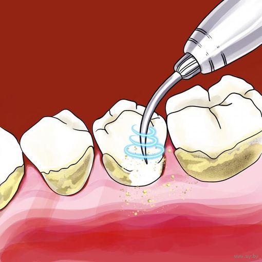 Готовая статья Зубная чистка ультразвуком